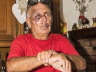 Seriate, anziano preso a pugni e calci per un bracciale